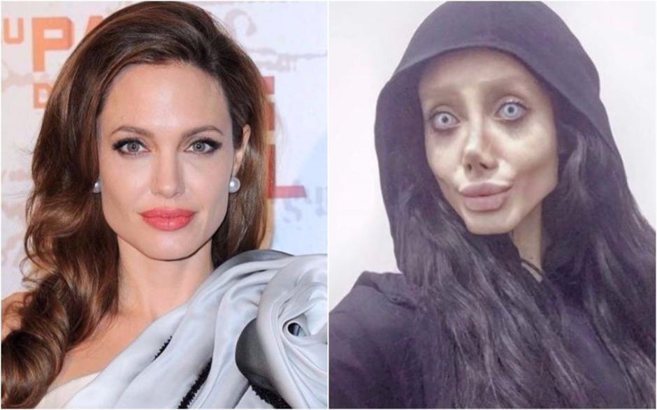 Mulher faz 50 cirurgias para tentar ficar parecida com Angelina Jolie